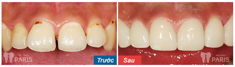 Mài răng hô có hại hay không? Chuyên gia tư vấn chính xác 1