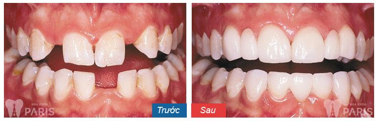 làm răng sứ thẩm mỹ 2
