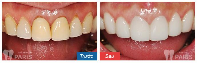hình ảnh bọc răng sứ 11