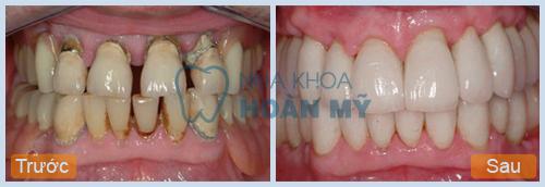 Tìm hiểu nguyên nhân răng thưa do yếu tố nào gây nên? 2