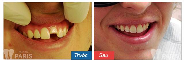 hình ảnh bọc răng sứ 2