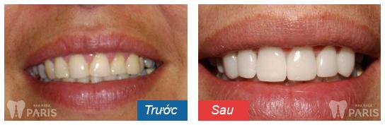 hình ảnh bọc răng sứ 10