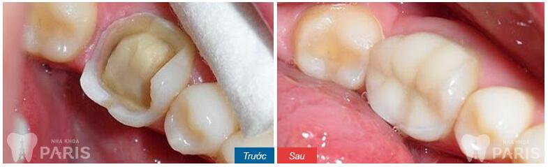 bọc răng sứ mất bao lâu để hồi phục 1