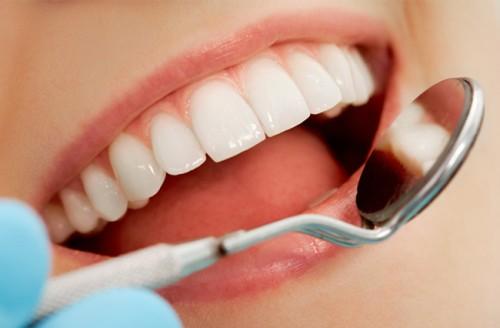 Kỹ thuật bọc răng sứ là gì?