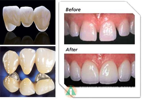 Kết quả hình ảnh cho bọc răng sứ kim loại quý