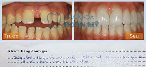 Cách khắc phục răng cửa bị thưa nào hiệu quả nhất? 2