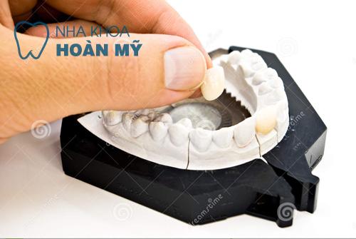 Những ưu điểm của răng sứ không kim loại 2