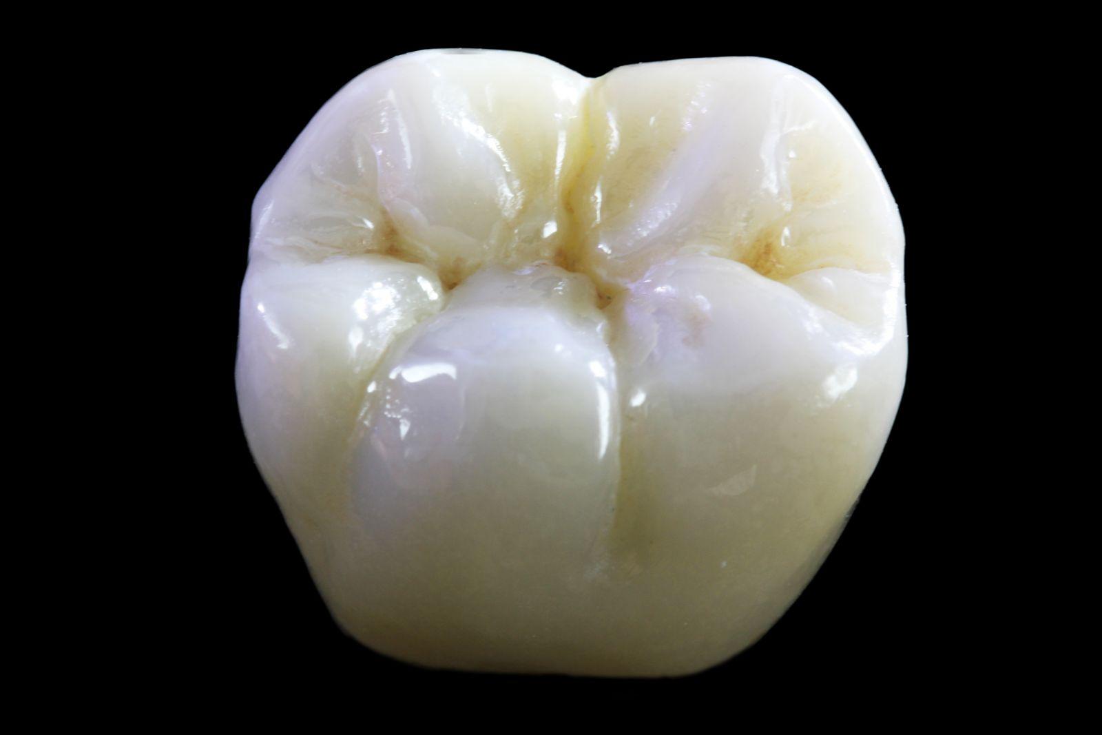 Làm răng giả bằng loại sứ nào tốt nhất? 1