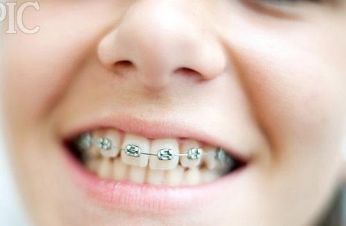 Cách làm răng đều đẹp hoàn hảo chỉ sau 1 lần thực hiện 1