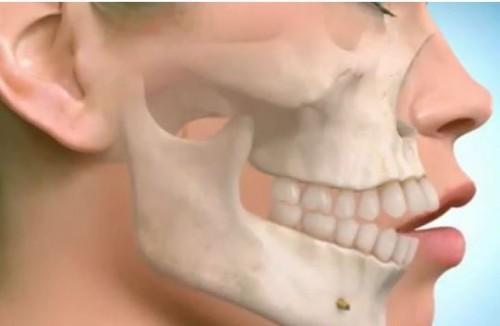 Cách làm răng đều đẹp hoàn hảo chỉ sau 1 lần thực hiện