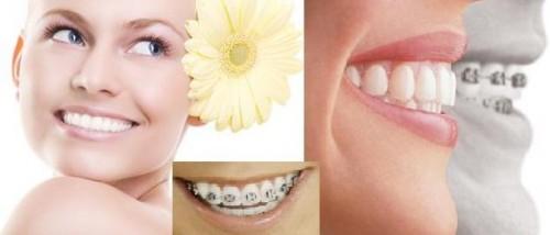 Cách làm răng hết hô VĨNH VIỄN tại nhà hiệu quả chỉ sau 1 tuần 3