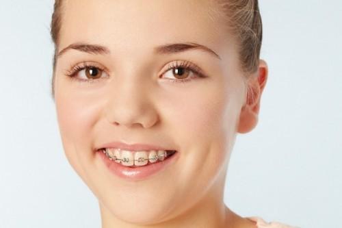 Răng hô phải làm sao cho đều đẹp nhanh chóng? 2