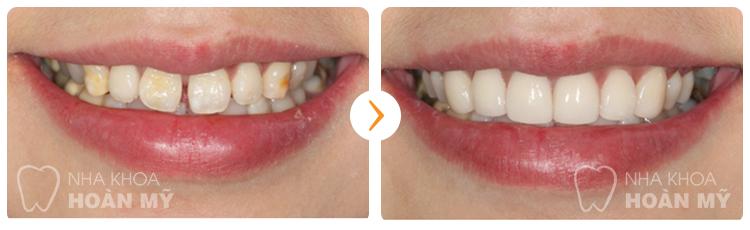 Những yếu tố nào gây nên răng thưa ?
