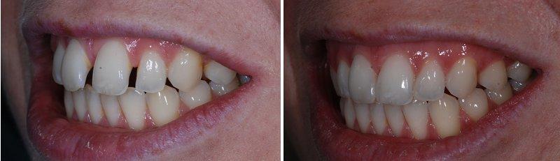 Bọc răng sứ cho răng vẩu áp dụng những trường hợp nào?1