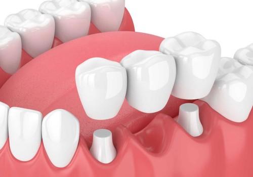 Cầu răng là cách phục hình cổ điển và không tối ưu bằng ghép implant