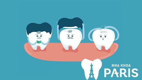 4 Lưu ý sau khi làm răng sứ để tránh răng Ê Buốt và giữ răng VĨNH VIỄN 1