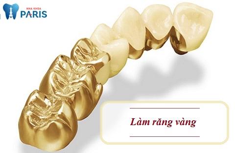 Làm răng vàng có phải là sự lựa chọn tối ưu trong phục hình răng?