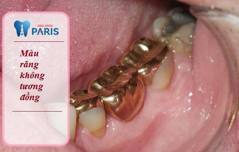 Màu sắc răng vàng không tương đồng răng thật