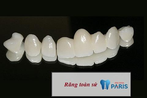 Răng toàn sứ - Màu sắc tự nhiên, chi phí hợp lý