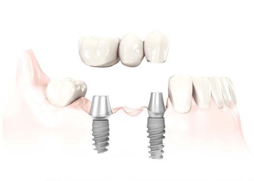 Làm cầu răng không còn tối ưu khi thay thế răng mất? 2