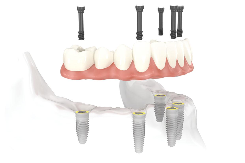 Làm cầu răng không còn tối ưu khi thay thế răng mất? 5