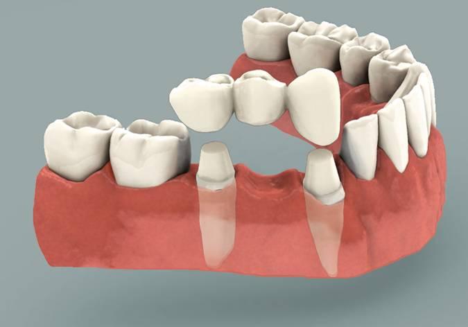 Làm cầu răng không còn tối ưu khi thay thế răng mất? 1