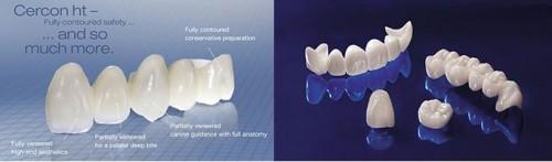 Tại sao răng sứ cercon HT lại là sự lựa chọn số 1? 2