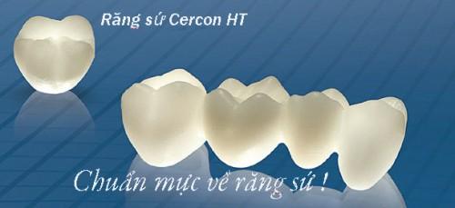Răng sứ cercon HT là sự lựa chọn số 1