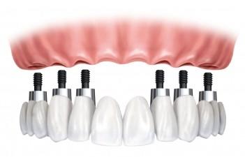 Làm cầu răng không còn tối ưu khi thay thế răng mất? 6