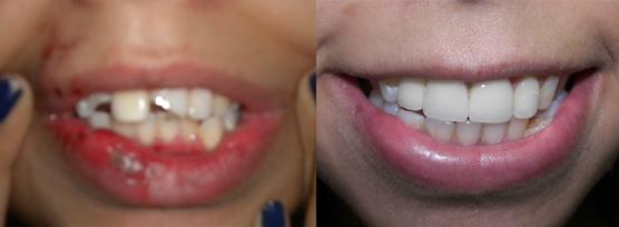 Tại nha khoa Hoàn Mỹ giá chụp răng sứ titan là bao nhiêu ?