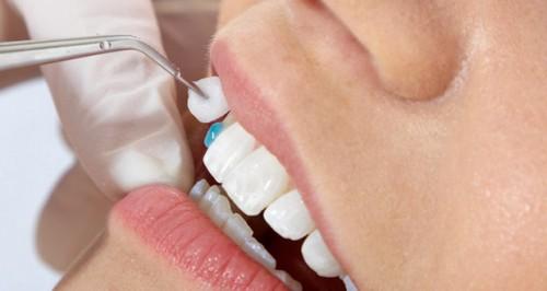 Phục hình răng cửa vỡ phục hồi chức năng ăn nhai