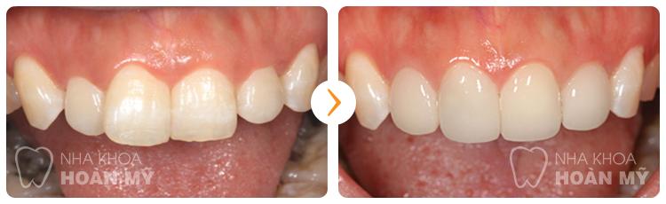 Mài răng cửa có ảnh hưởng đến sức khỏe răng miệng không?