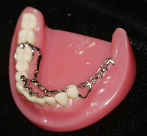 Hàm răng giả tháo lắp và những lưu ý cần biết