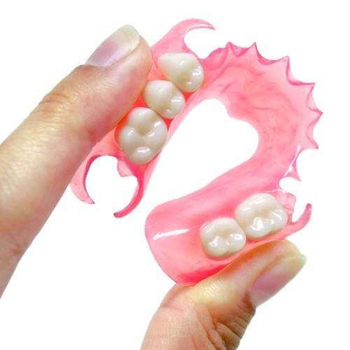 Hàm răng giả tháo lắp và những lưu ý cần biết1