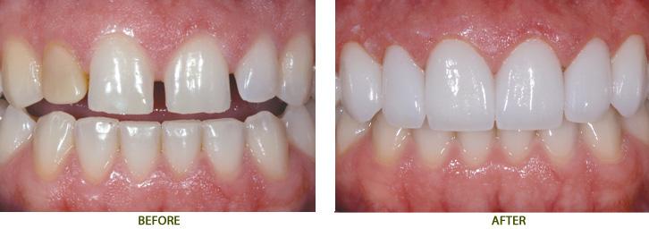 Làm mão răng sứ theo quy trình tiên tiến nhất năm 20163