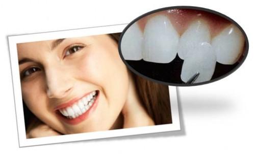 Răng bị vàng phải làm sao cho trắng hơn? 2