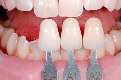 Răng sứ E.Max – lựa chọn tối ưu làm răng cửa giả 5