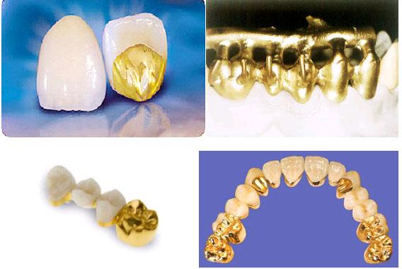 Làm răng vàng có phải lựa chọn tối ưu trong phục hình răng? 2