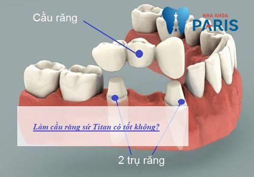 Làm cầu răng sứ titan có tốt không? Có bền không? 1