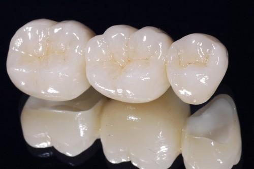 Bọc răng sứ cho răng hàm bị sâu có hiệu quả thế nào? 2