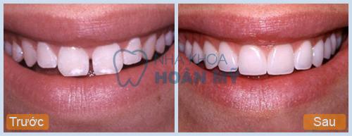 Răng sứ titan có tốt và có nhiều ưu điểm vượt trội không?3