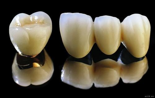 Những ưu điểm vượt trội của răng sứ titan