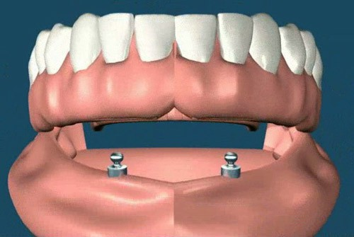 Hàm răng giả tháo lắp và những điều cần chú ý2