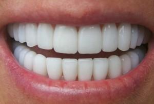 Răng ố vàng có nên bọc răng sứ