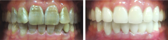 Phương pháp tốt nhất để bọc răng sứ là gì?