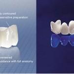 Bọc răng sứ cercon giá bao nhiêu tiền? BẢNG GIÁ MỚI nhất 2017