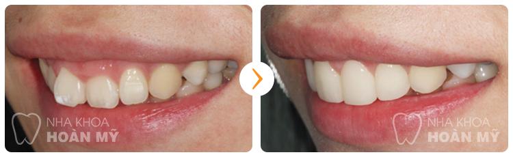 Mài răng hô chi phí ưu đãi nhất là bao nhiêu ?