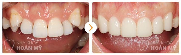 Có nên mài răng khểnh quá khổ hay không?