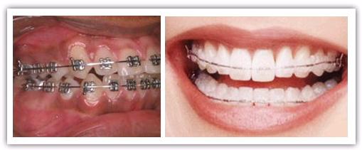 Giải pháp nào cho tình trạng hô hai răng cửa? 2