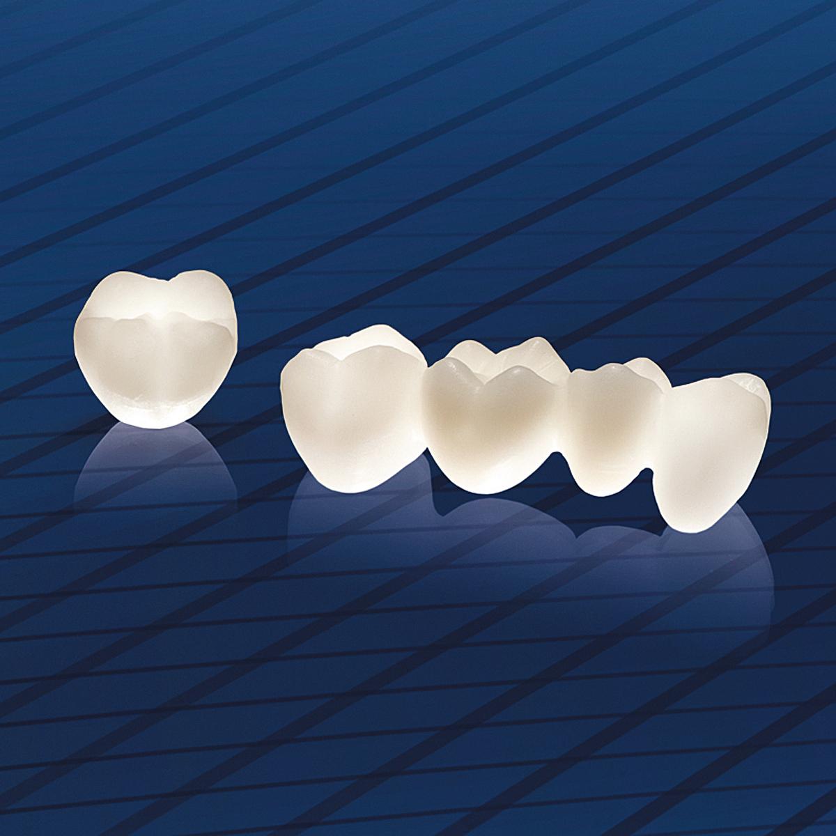 Răng sứ Cercon sử dụng được bao lâu là thắc mắc của nhiều người